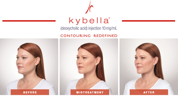 Draw A Different Line With Kybella