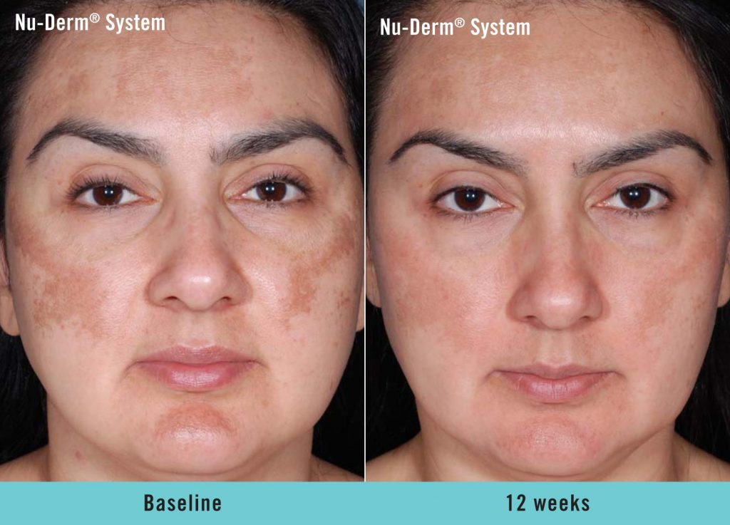 5 Phases Of Obagi Nu Derm Transformation